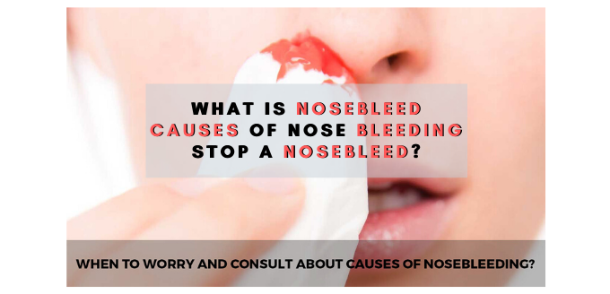Photo of What is Nosebleed – Causes of Nose Bleeding – Stop a Nosebleed?