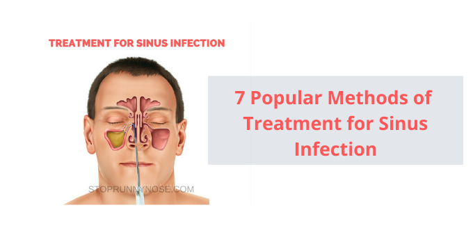 Photo of 7 Popular Methods of Treatment for Sinus Infection