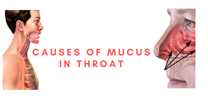 Photo of Causes of Mucus in Throat