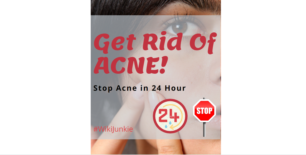 Photo of How To Get Rid Of Acne Really Fast In 24 Hour?
