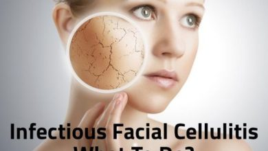 Photo of Infectious Facial Cellulitis: What To Do? (People at Risk)