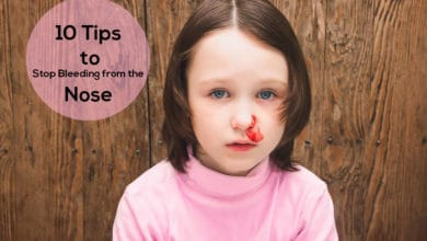 Photo of 10 Tips to Stop Bleeding From the Nose