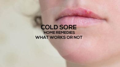 Photo of Cold Sore Home Remedies – My Experience with What Works or Not