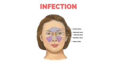 Photo of Home Remedies for Sinus Infection   Sinusitis Infection