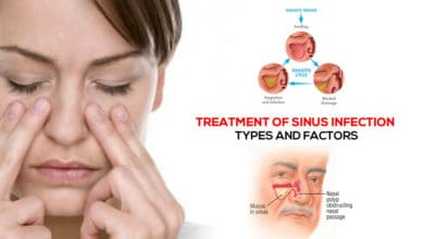 Photo of Prevention & Treatment of Sinus infection | Types and Factors