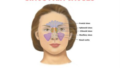 Photo of Top 5 Causes of Sinus Pain | Sinus Infection Expert